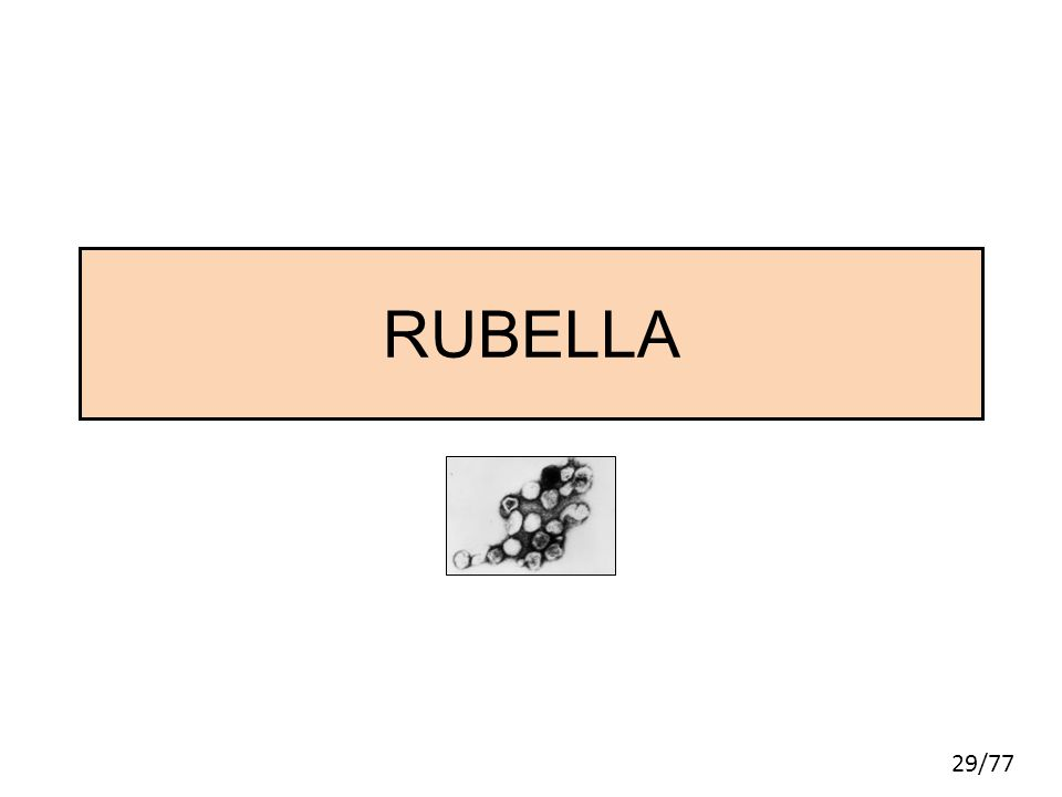 RUBELLA