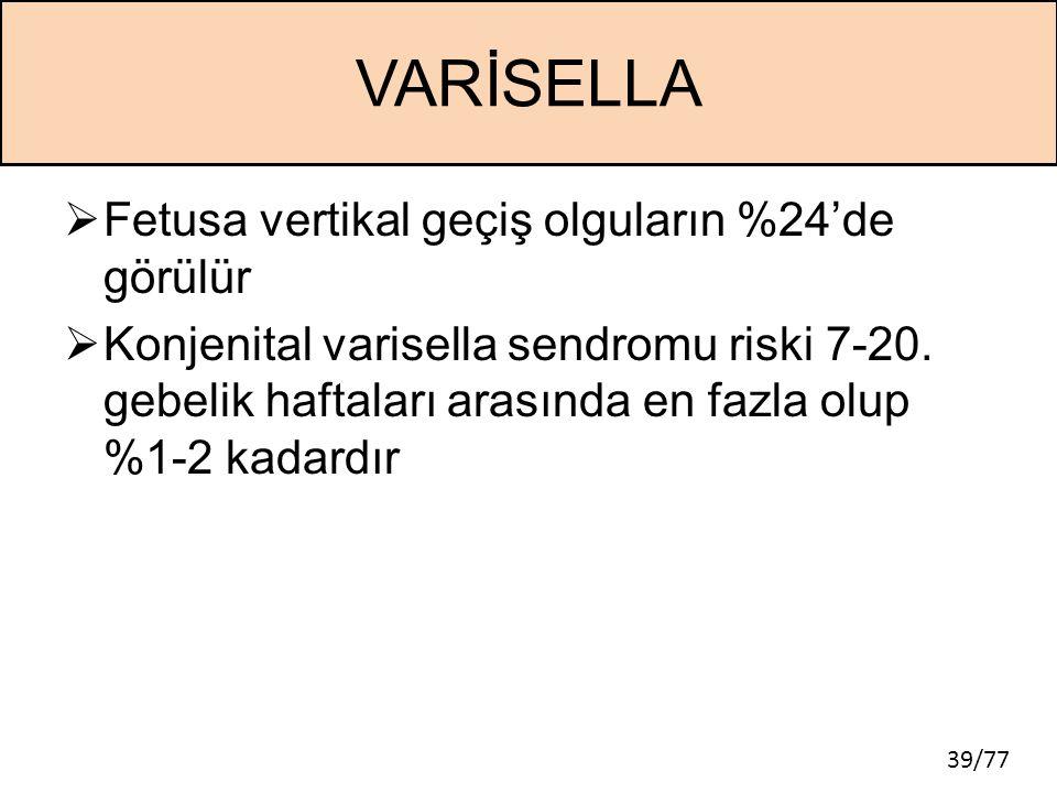 VARİSELLA Fetusa vertikal geçiş olguların %24'de görülür