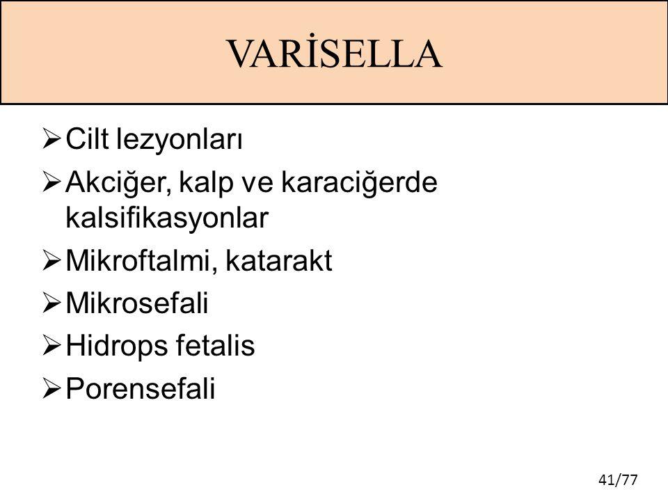 VARİSELLA Cilt lezyonları