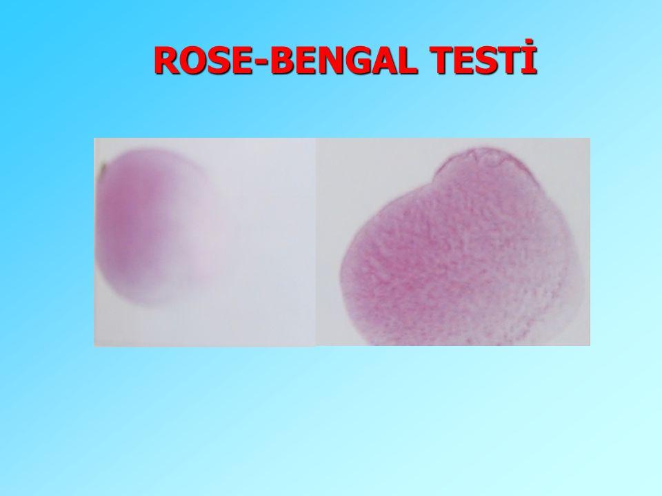 ROSE-BENGAL TESTİ