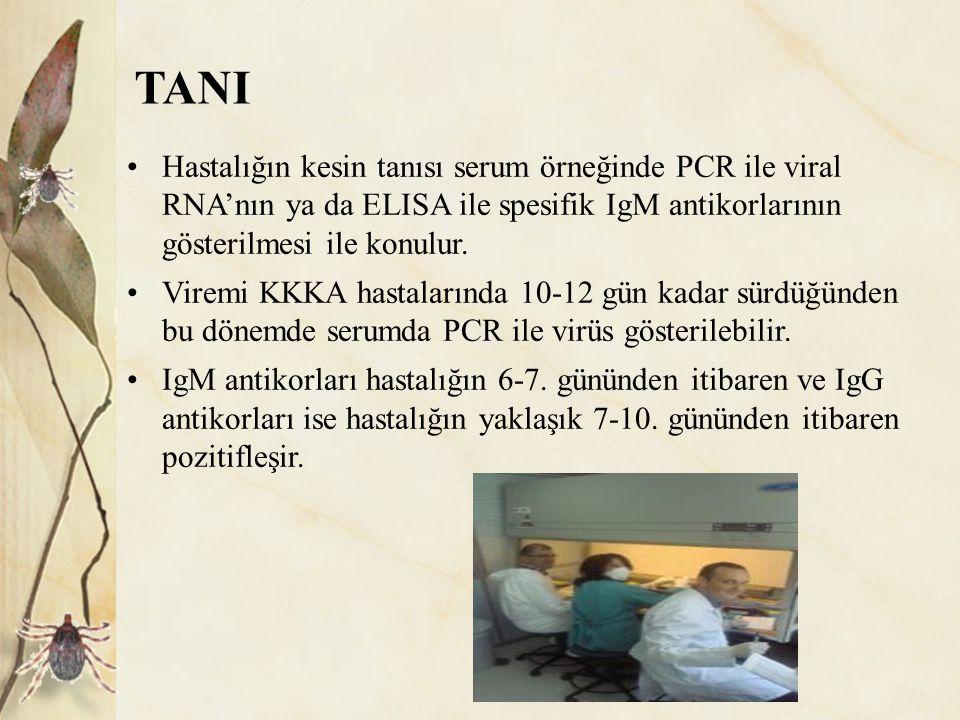 TANI Hastalığın kesin tanısı serum örneğinde PCR ile viral RNA'nın ya da ELISA ile spesifik IgM antikorlarının gösterilmesi ile konulur.