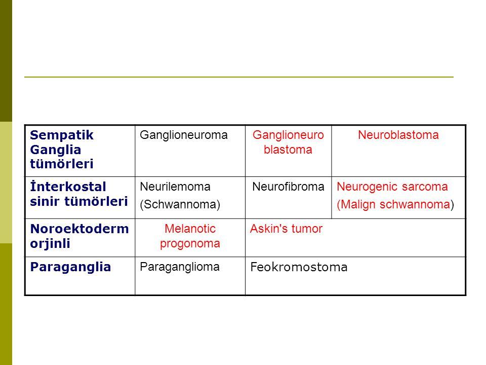 Ganglioneuroblastoma