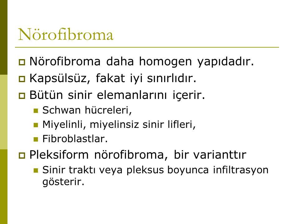 Nörofibroma Nörofibroma daha homogen yapıdadır.