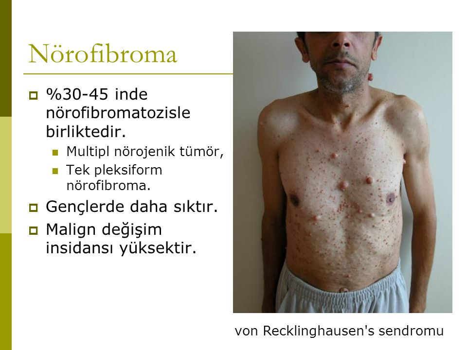 Nörofibroma %30-45 inde nörofibromatozisle birliktedir.