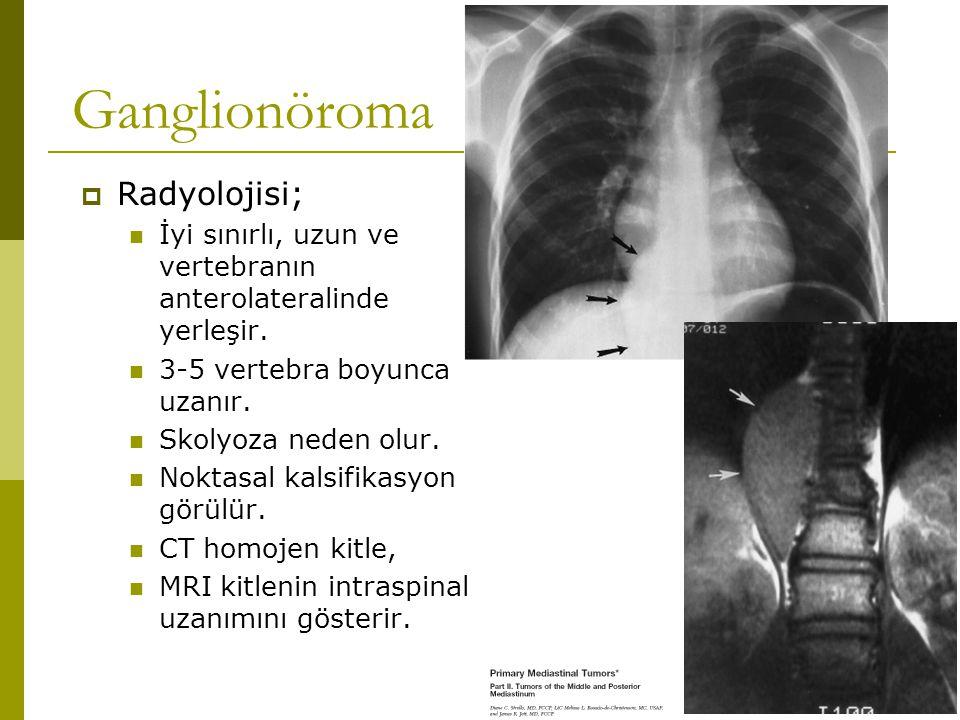 Ganglionöroma Radyolojisi;