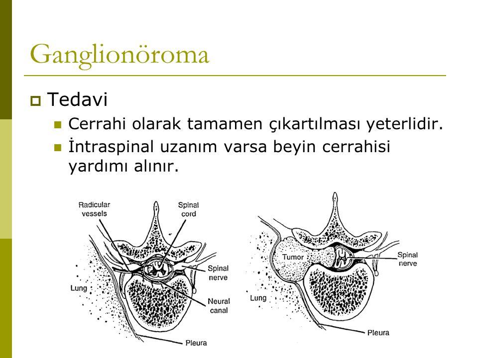 Ganglionöroma Tedavi Cerrahi olarak tamamen çıkartılması yeterlidir.