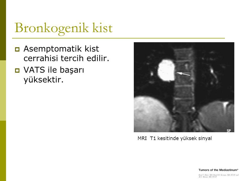 Bronkogenik kist Asemptomatik kist cerrahisi tercih edilir.