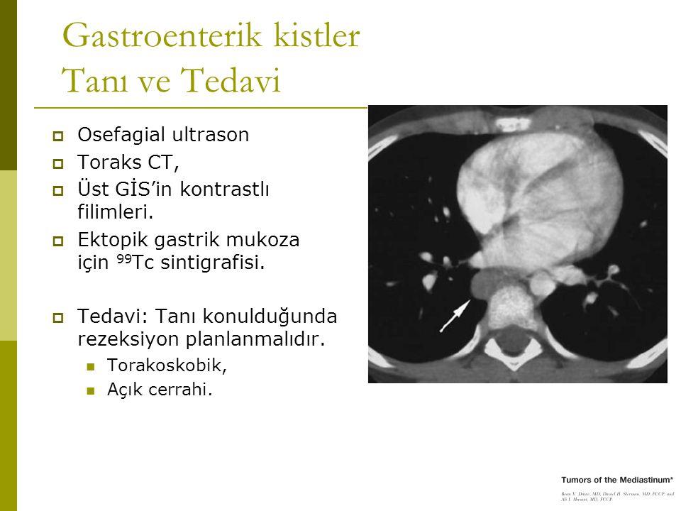 Gastroenterik kistler Tanı ve Tedavi