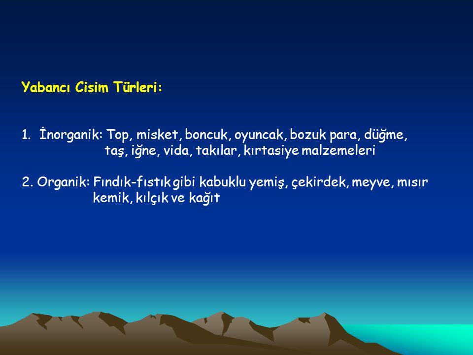 Yabancı Cisim Türleri: