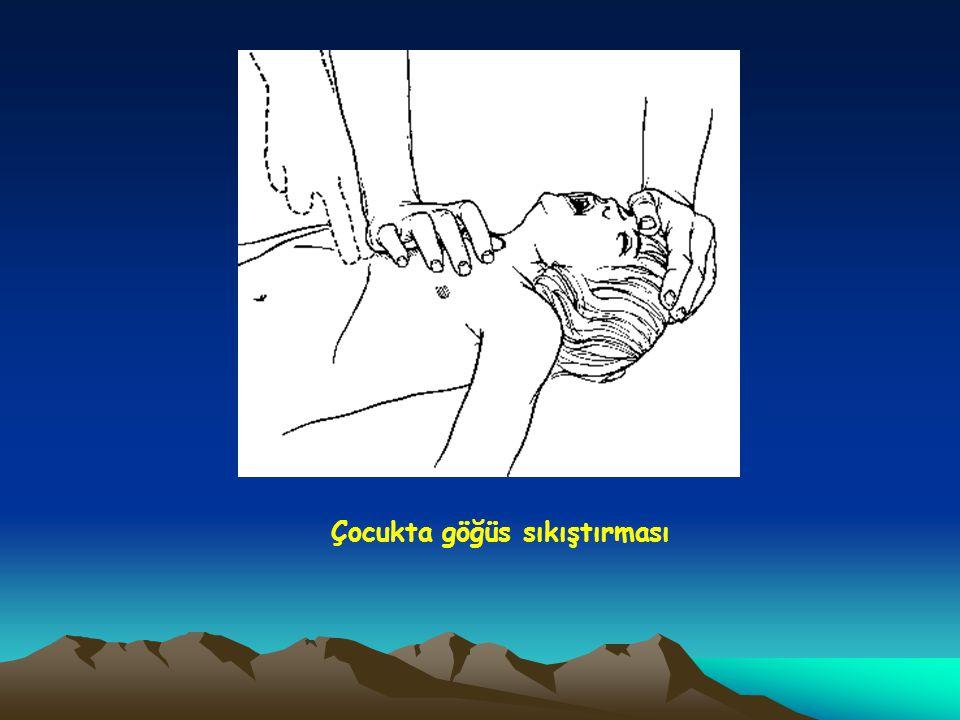 Çocukta göğüs sıkıştırması