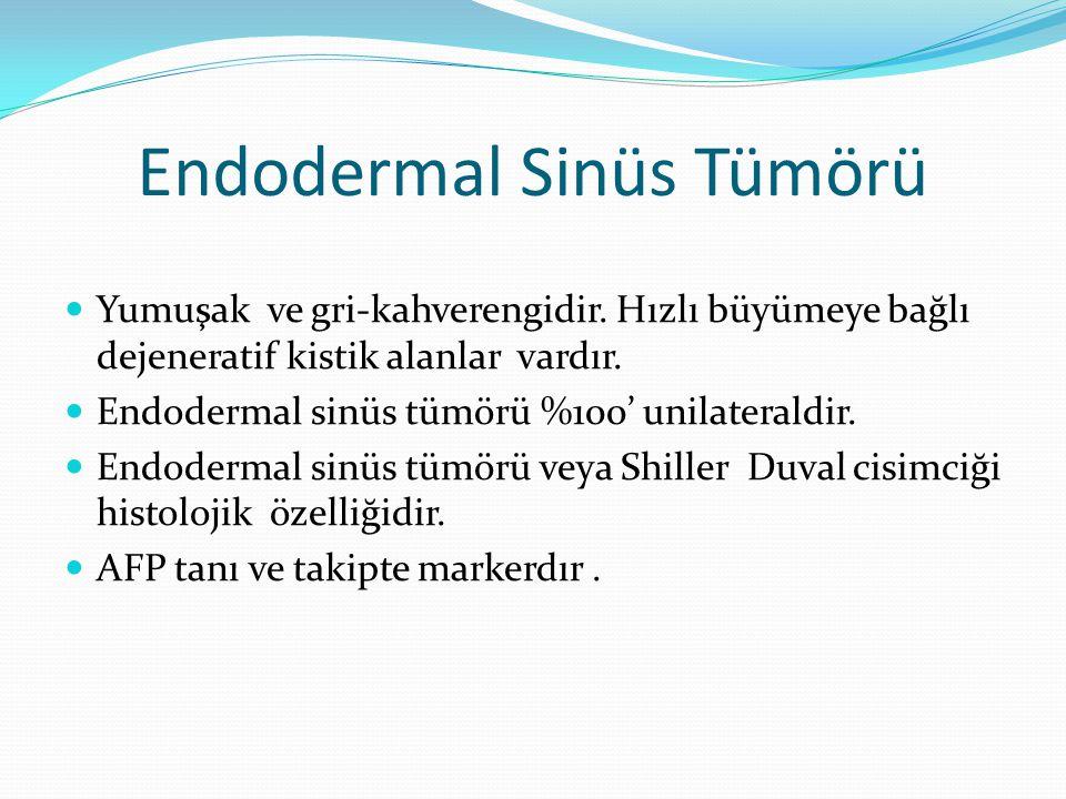 Endodermal Sinüs Tümörü