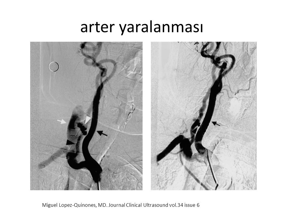 arter yaralanması Miguel Lopez-Quinones, MD. Journal Clinical Ultrasound vol.34 issue 6
