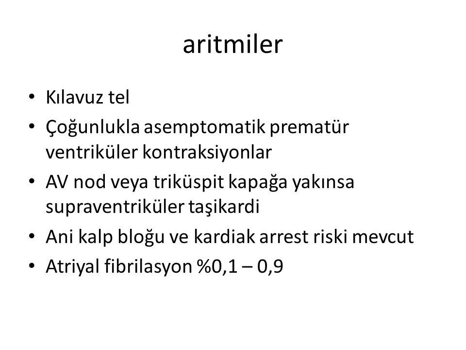 aritmiler Kılavuz tel. Çoğunlukla asemptomatik prematür ventriküler kontraksiyonlar.