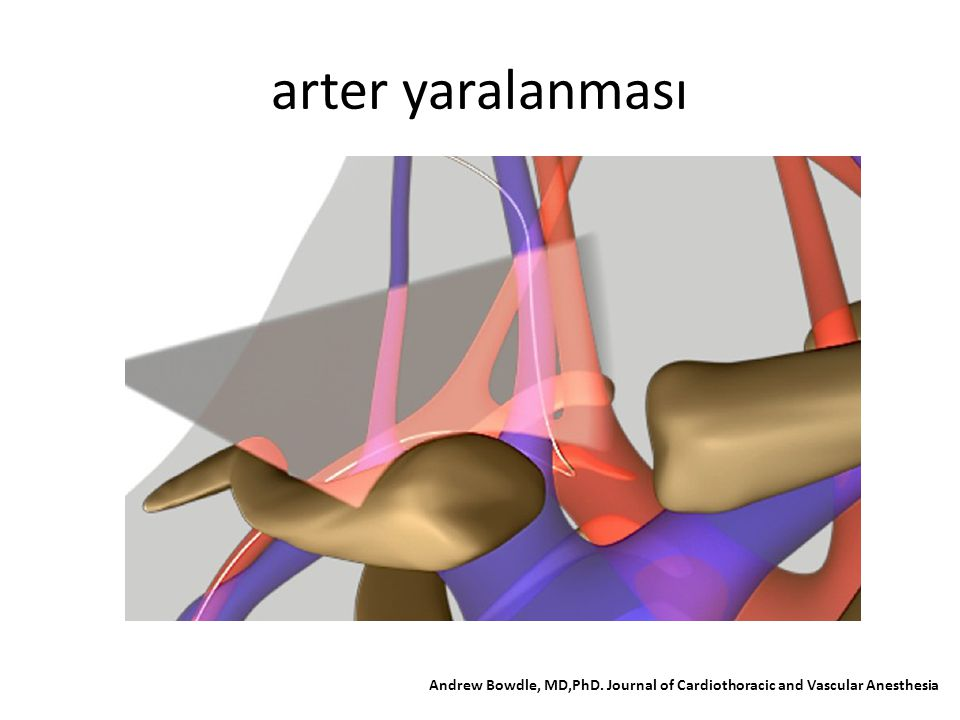 arter yaralanması Andrew Bowdle, MD,PhD. Journal of Cardiothoracic and Vascular Anesthesia
