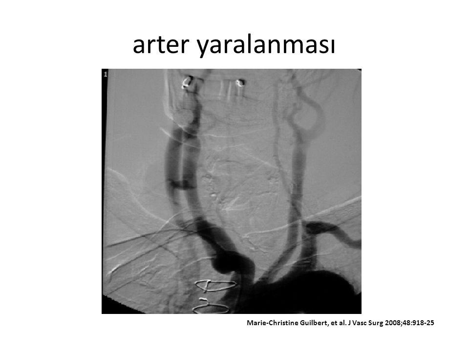 arter yaralanması Marie-Christine Guilbert, et al. J Vasc Surg 2008;48:918-25