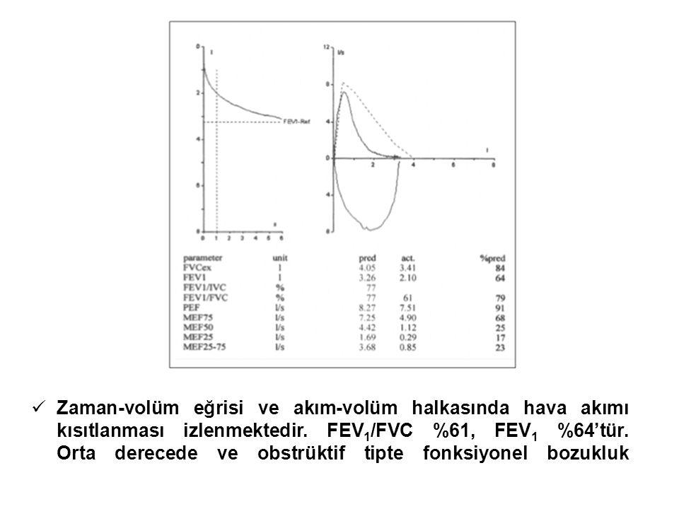 Zaman-volüm eğrisi ve akım-volüm halkasında hava akımı kısıtlanması izlenmektedir.