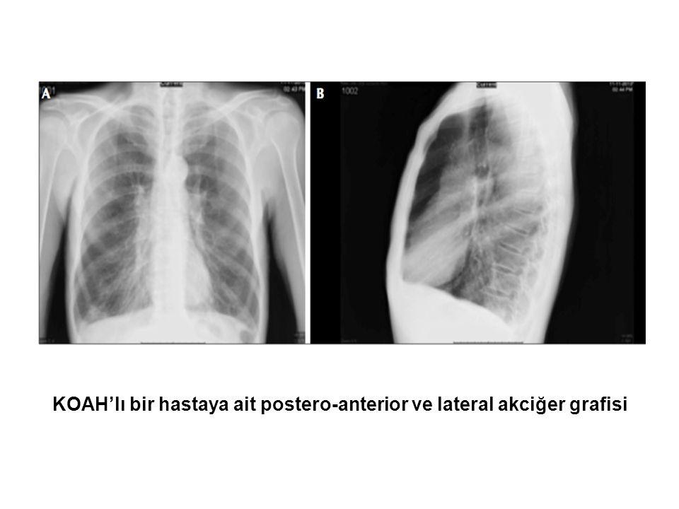 KOAH'lı bir hastaya ait postero-anterior ve lateral akciğer grafisi