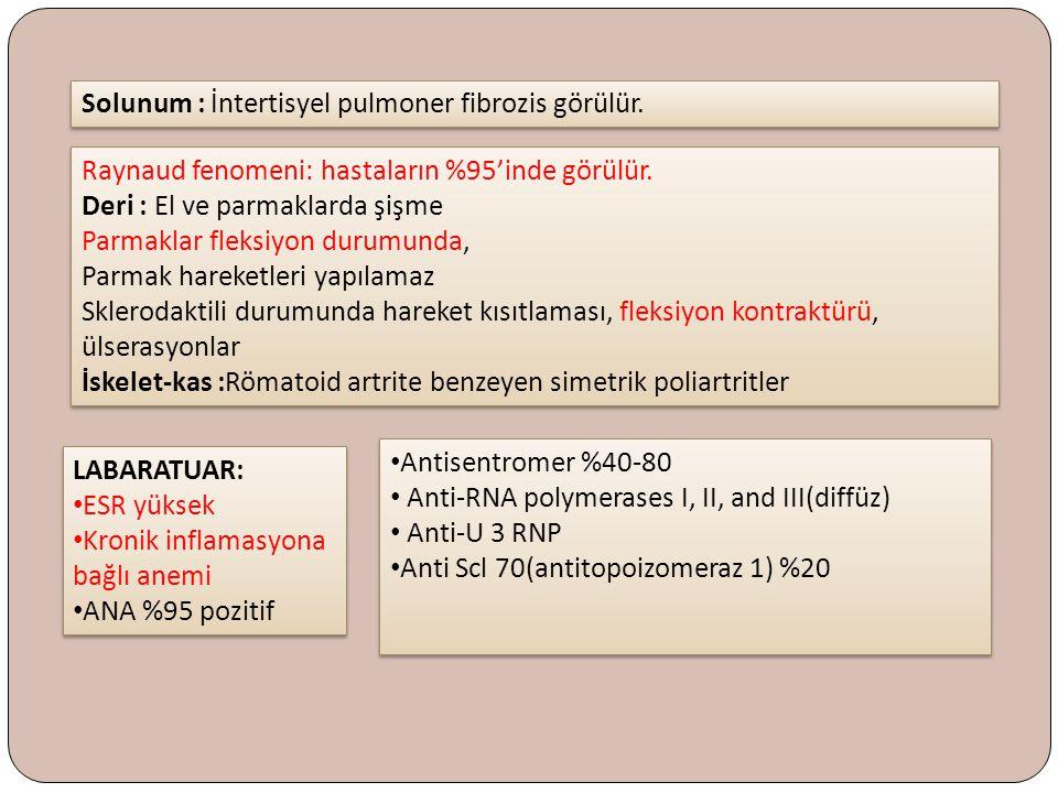 Solunum : İntertisyel pulmoner fibrozis görülür.