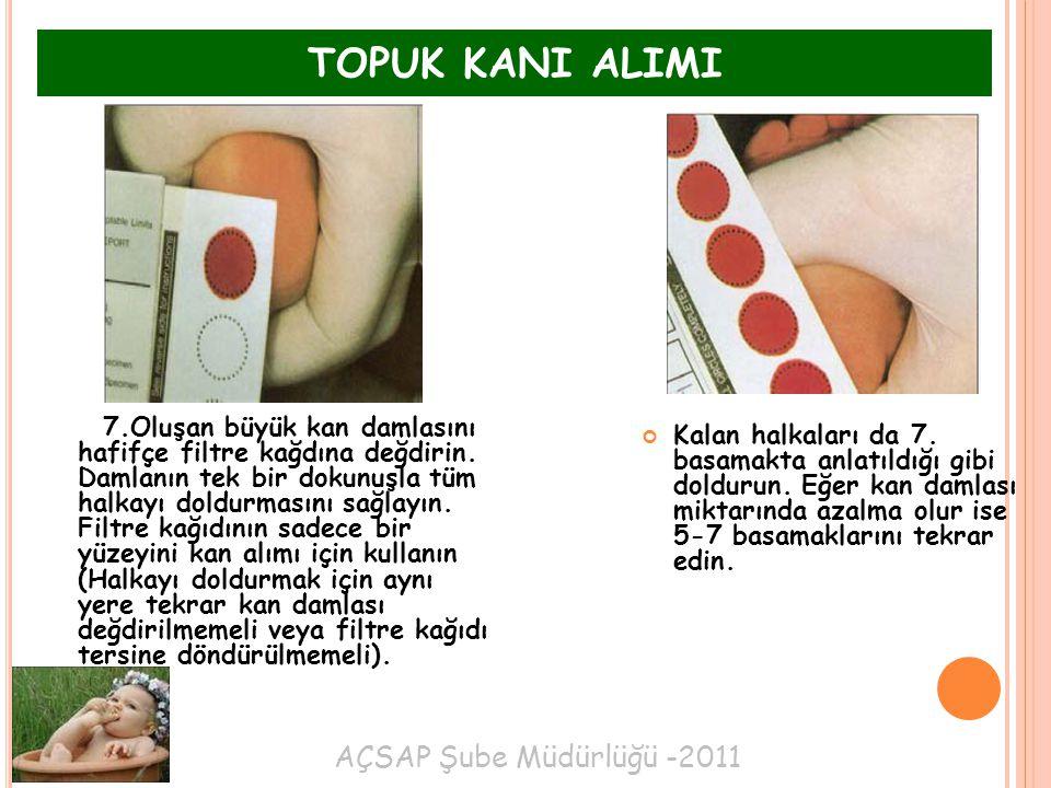 TOPUK KANI ALIMI AÇSAP Şube Müdürlüğü -2011