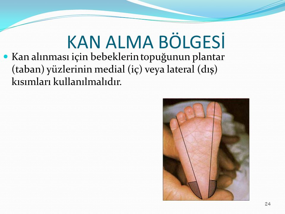 KAN ALMA BÖLGESİ Kan alınması için bebeklerin topuğunun plantar (taban) yüzlerinin medial (iç) veya lateral (dış) kısımları kullanılmalıdır.