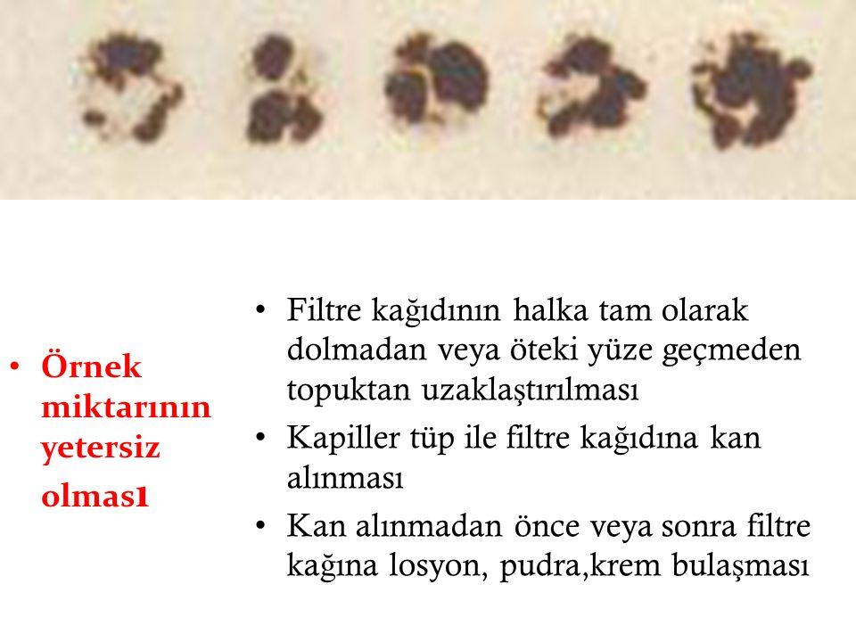 Filtre kağıdının halka tam olarak dolmadan veya öteki yüze geçmeden topuktan uzaklaştırılması