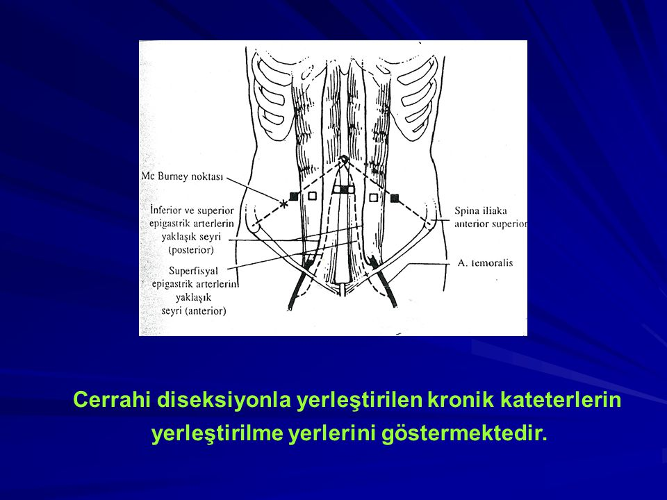 Cerrahi diseksiyonla yerleştirilen kronik kateterlerin