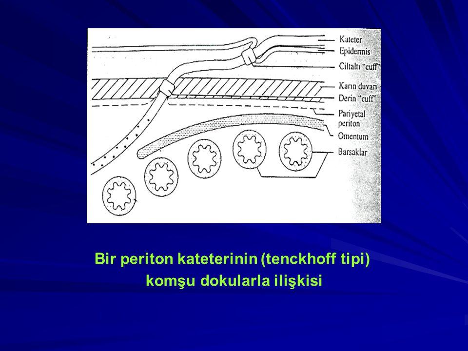 Bir periton kateterinin (tenckhoff tipi) komşu dokularla ilişkisi