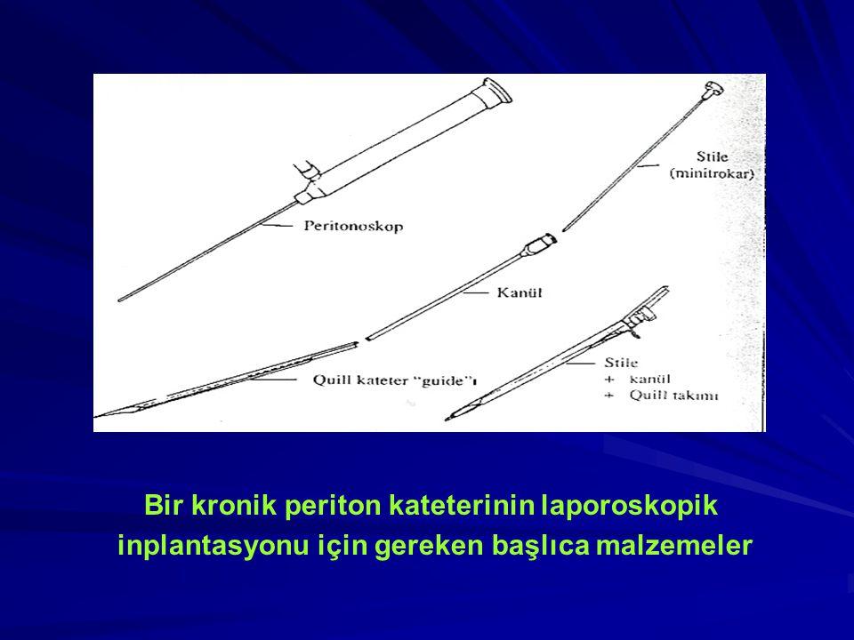 Bir kronik periton kateterinin laporoskopik