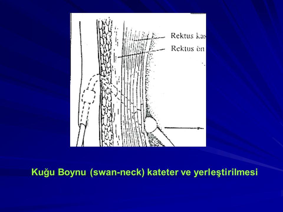 Kuğu Boynu (swan-neck) kateter ve yerleştirilmesi