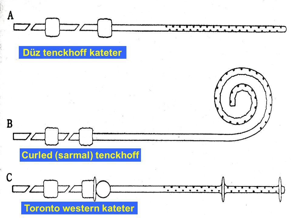 Curled (sarmal) tenckhoff Toronto western kateter