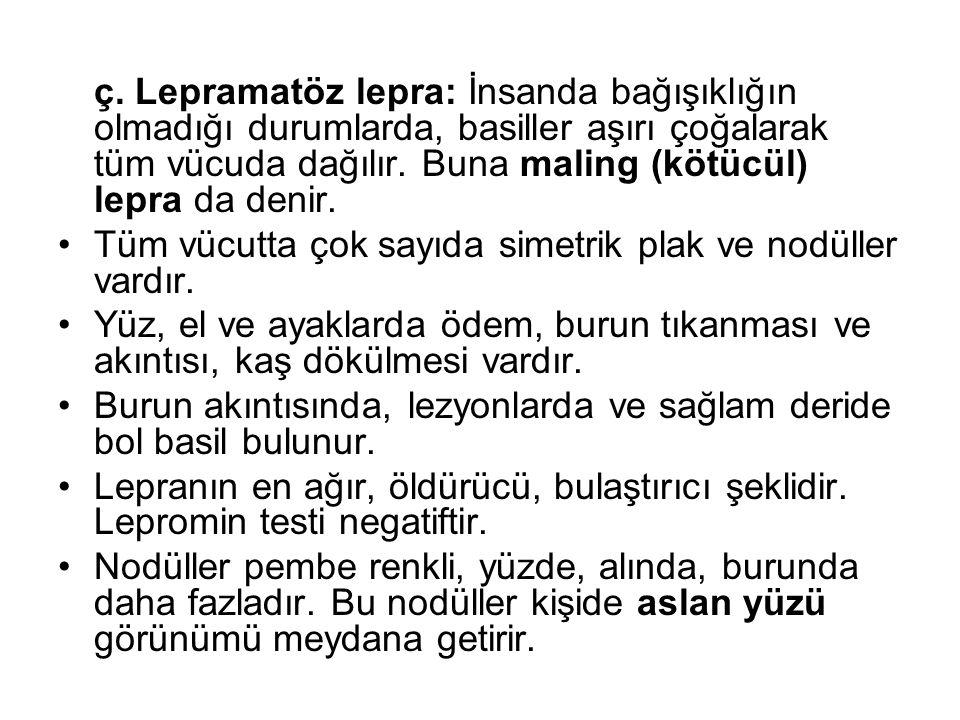 ç. Lepramatöz lepra: İnsanda bağışıklığın olmadığı durumlarda, basiller aşırı çoğalarak tüm vücuda dağılır. Buna maling (kötücül) lepra da denir.