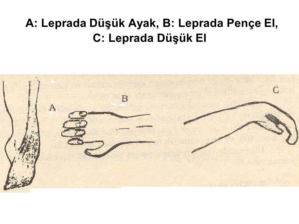 A: Leprada Düşük Ayak, B: Leprada Pençe El, C: Leprada Düşük El