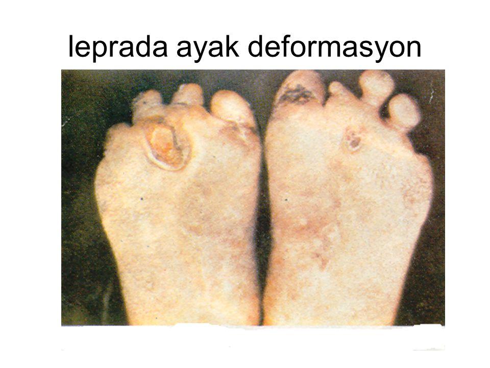 leprada ayak deformasyon