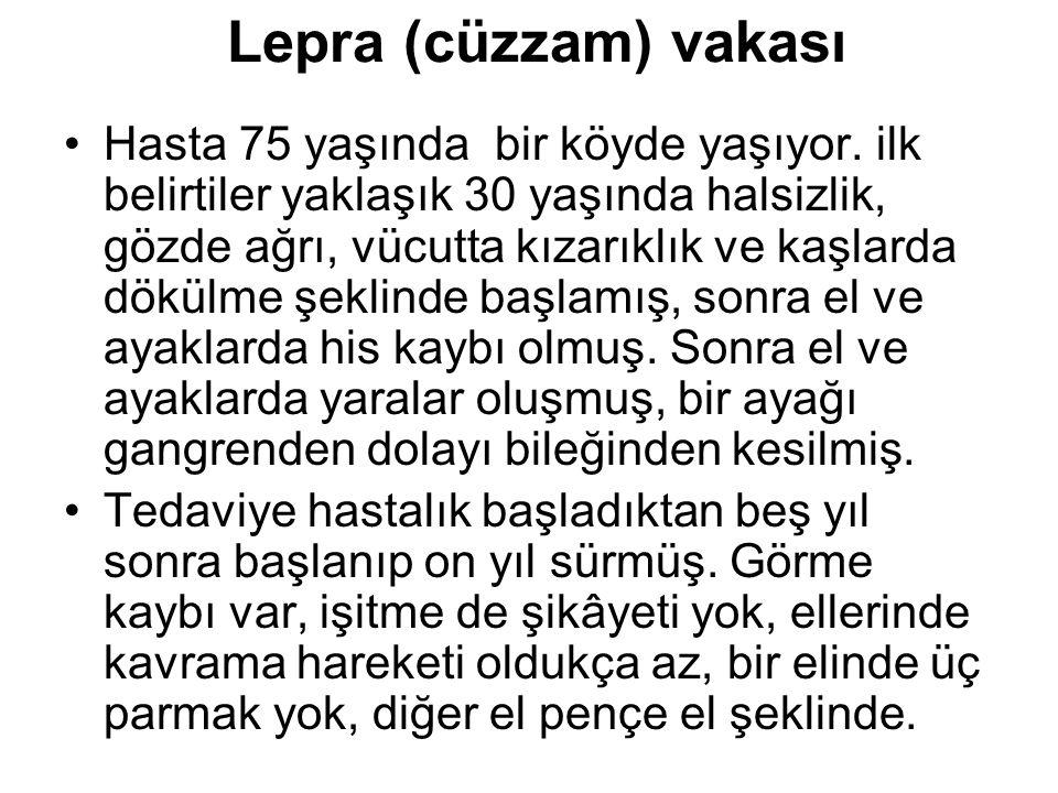 Lepra (cüzzam) vakası