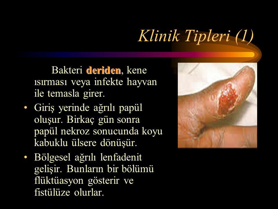 Klinik Tipleri (1) Bakteri deriden, kene ısırması veya infekte hayvan ile temasla girer.