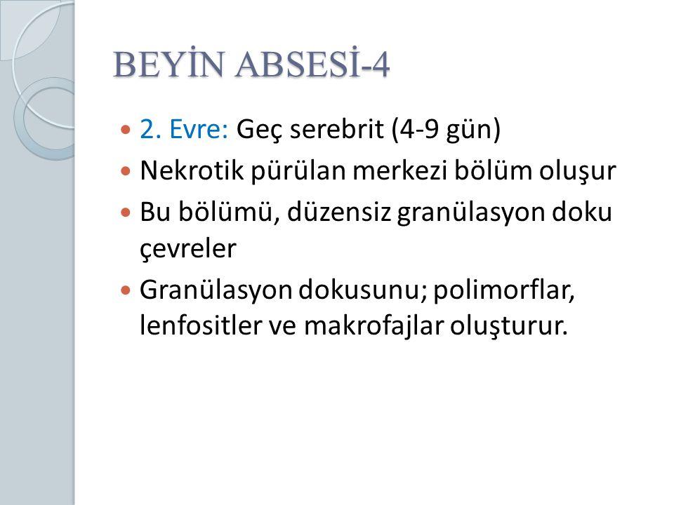 BEYİN ABSESİ-4 2. Evre: Geç serebrit (4-9 gün)