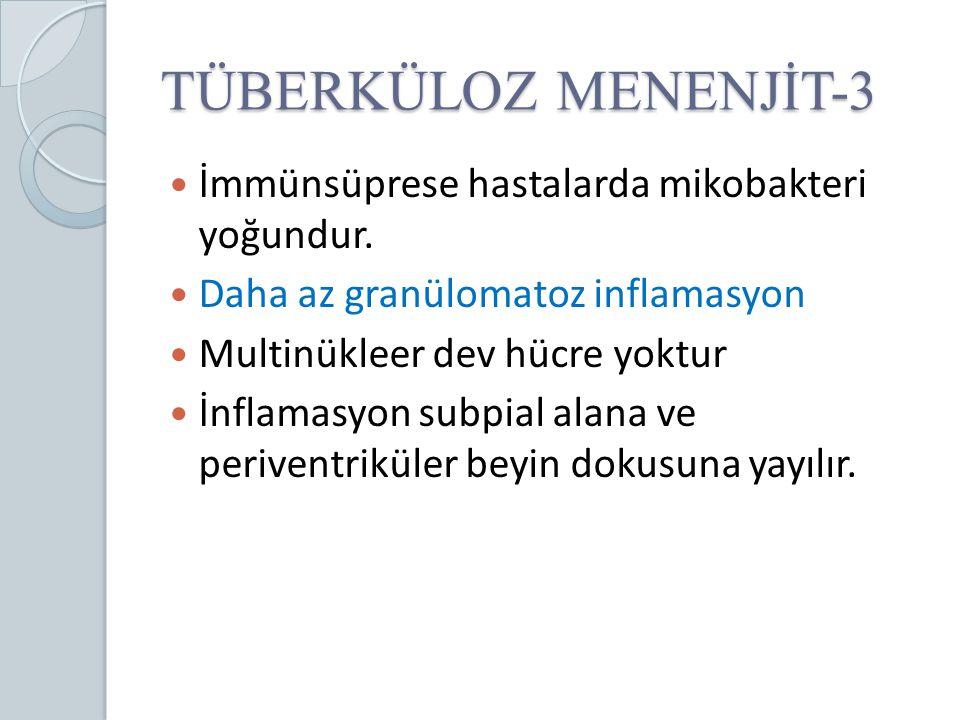 TÜBERKÜLOZ MENENJİT-3 İmmünsüprese hastalarda mikobakteri yoğundur.