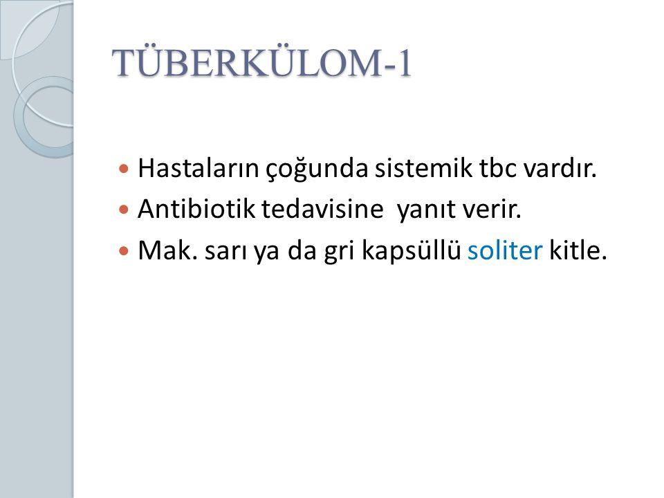 TÜBERKÜLOM-1 Hastaların çoğunda sistemik tbc vardır.