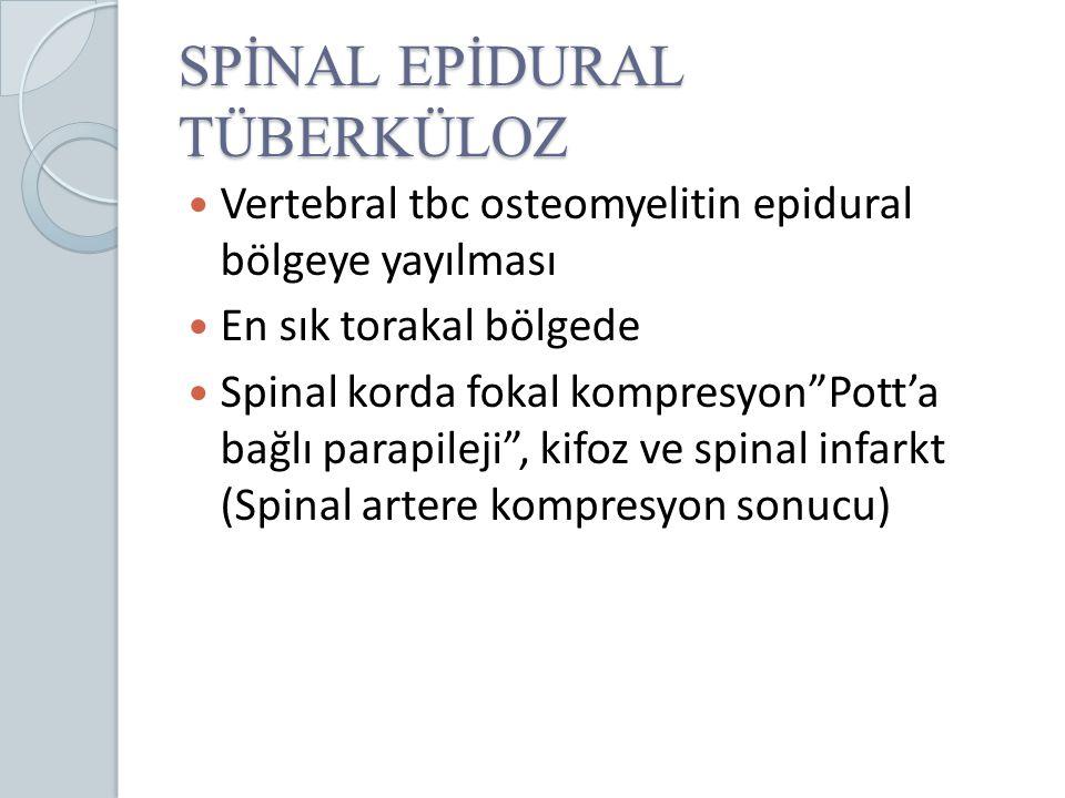 SPİNAL EPİDURAL TÜBERKÜLOZ
