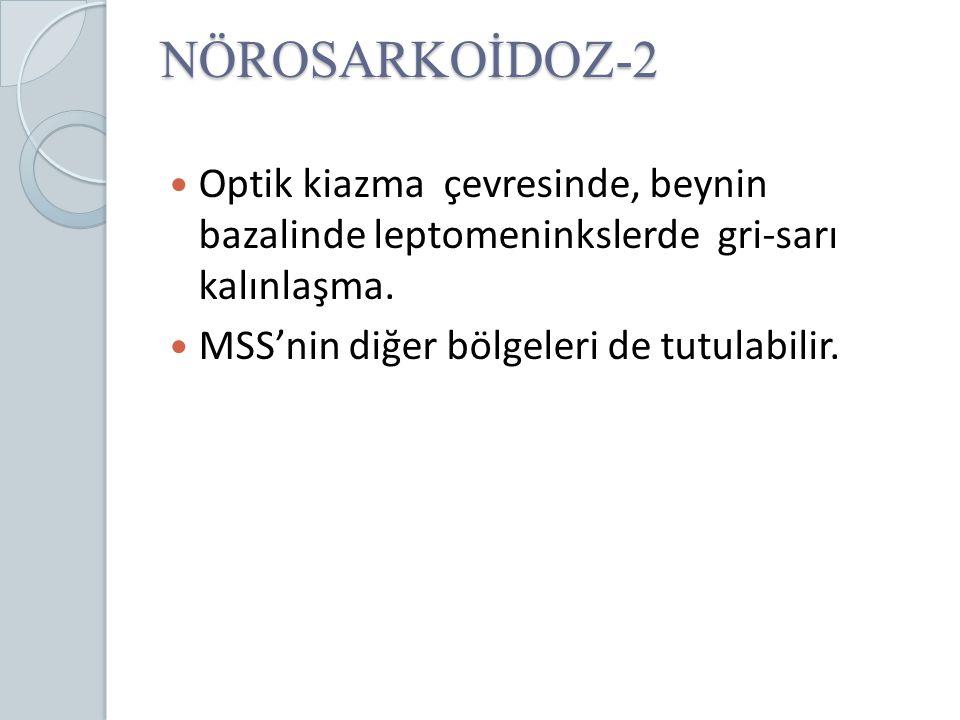 NÖROSARKOİDOZ-2 Optik kiazma çevresinde, beynin bazalinde leptomeninkslerde gri-sarı kalınlaşma.