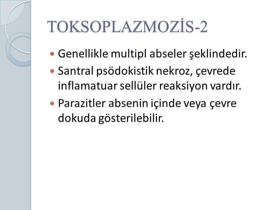 TOKSOPLAZMOZİS-2 Genellikle multipl abseler şeklindedir.