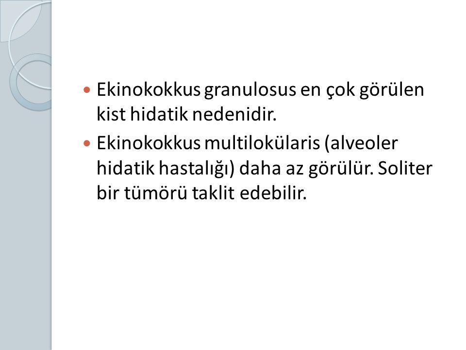 Ekinokokkus granulosus en çok görülen kist hidatik nedenidir.