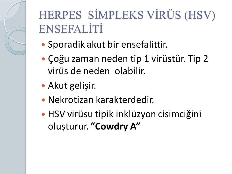 HERPES SİMPLEKS VİRÜS (HSV) ENSEFALİTİ