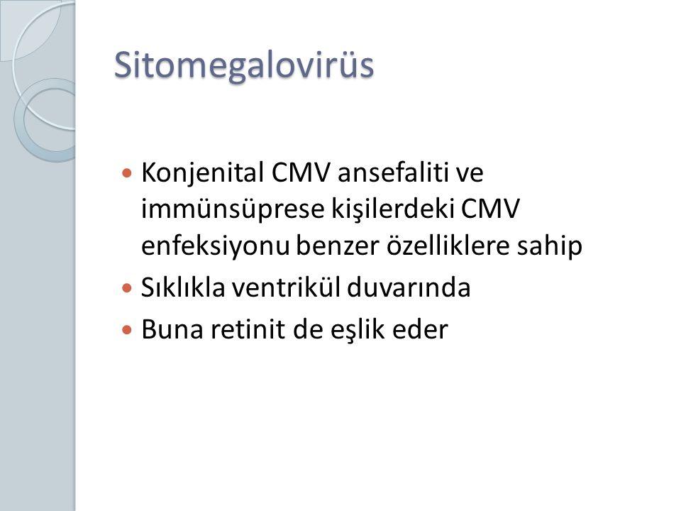 Sitomegalovirüs Konjenital CMV ansefaliti ve immünsüprese kişilerdeki CMV enfeksiyonu benzer özelliklere sahip.