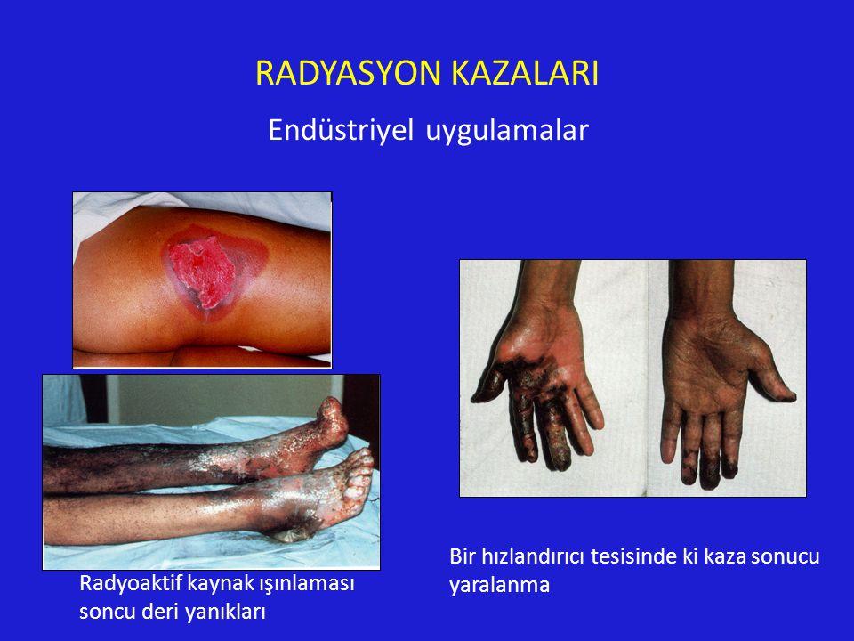 RADYASYON KAZALARI Endüstriyel uygulamalar