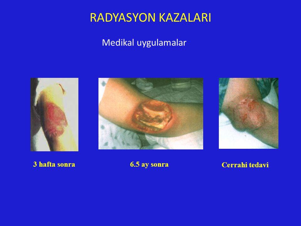RADYASYON KAZALARI Medikal uygulamalar 3 hafta sonra 6.5 ay sonra