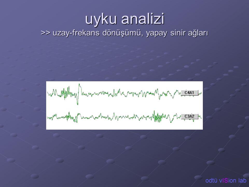 uyku analizi >> uzay-frekans dönüşümü, yapay sinir ağları