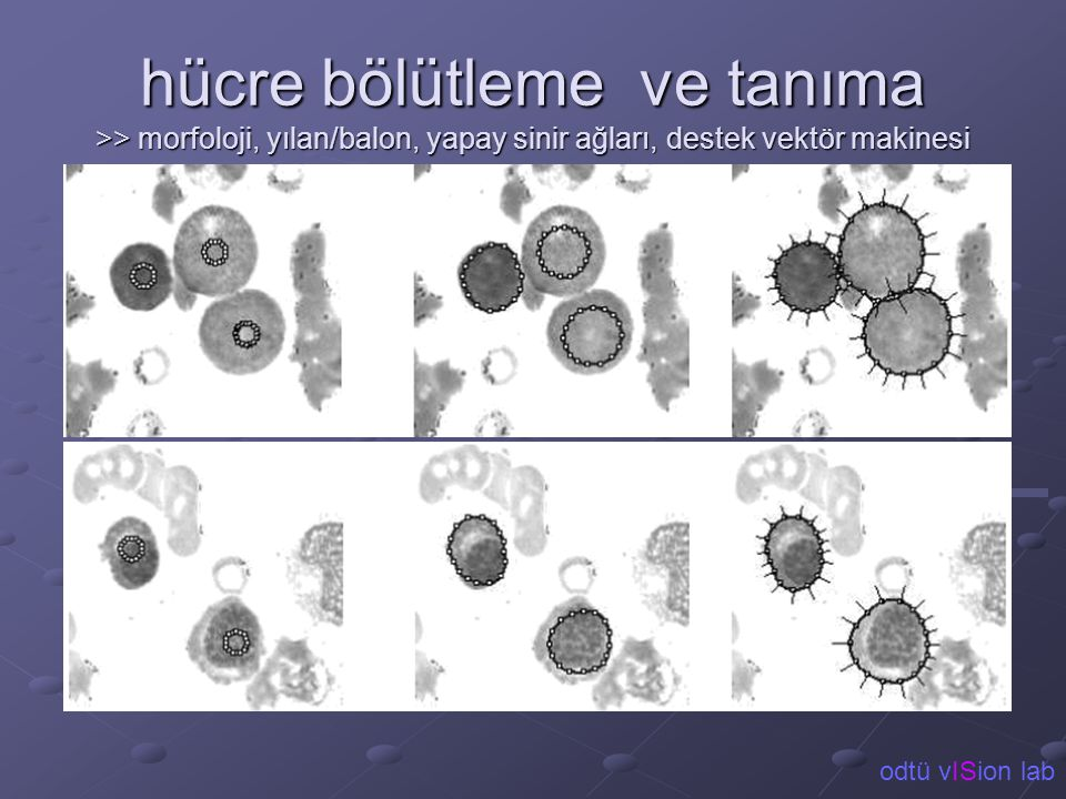 hücre bölütleme ve tanıma >> morfoloji, yılan/balon, yapay sinir ağları, destek vektör makinesi odtü vISion lab.