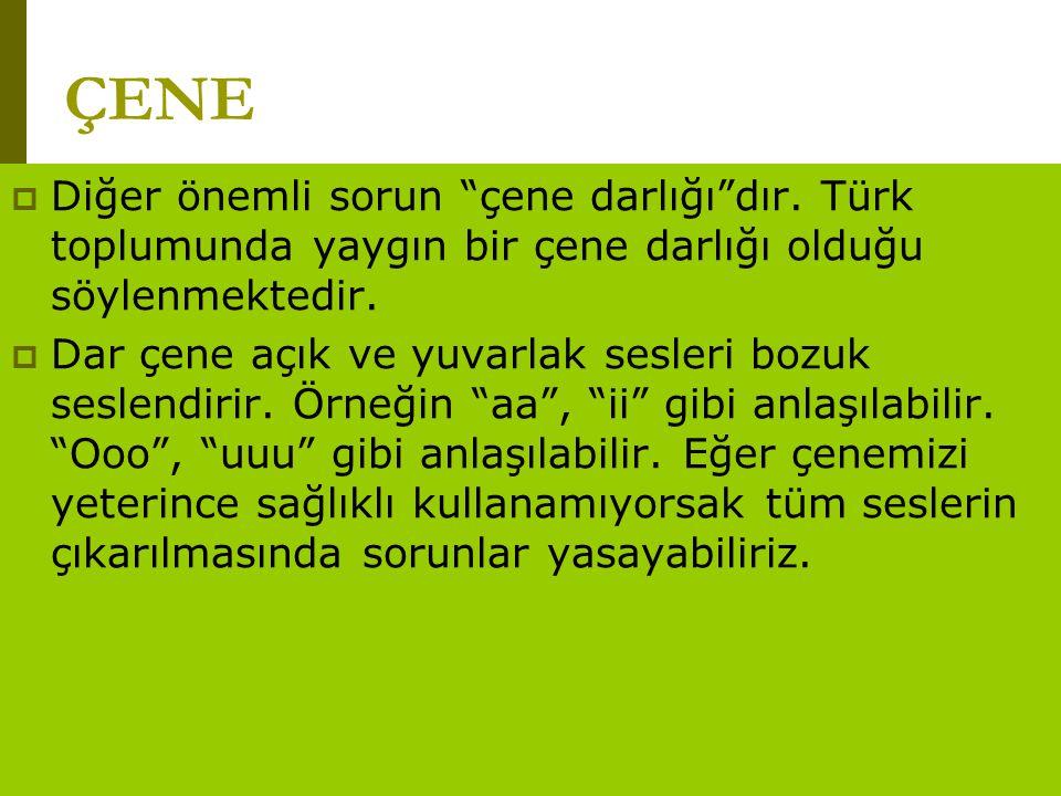 ÇENE Diğer önemli sorun çene darlığı dır. Türk toplumunda yaygın bir çene darlığı olduğu söylenmektedir.