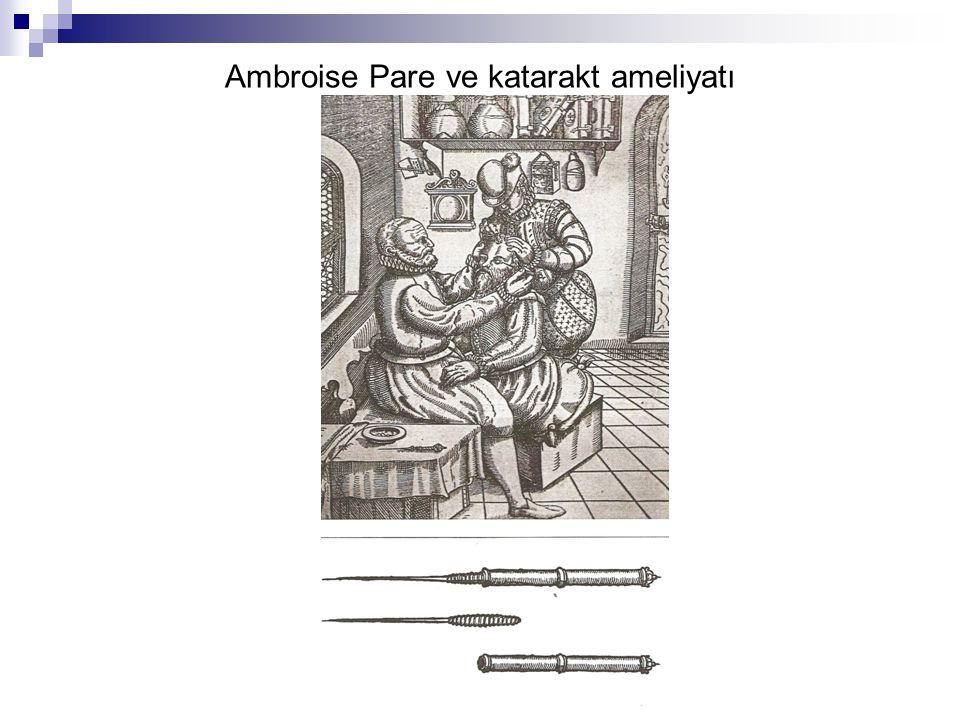 Ambroise Pare ve katarakt ameliyatı